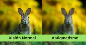 ¿Qué es astigmatismo?